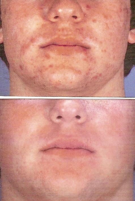 Угри b угревая сыпь уход за кожей с
